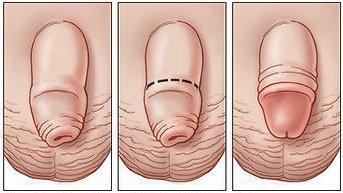 Urologas: varpos sveikata - tai ne tik gera erekcija - DELFI Gyvenimas
